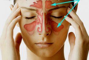 7 métodos naturais melhoria da sinusite