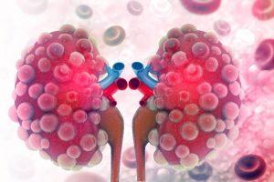 A ferritina alta? Atenção para a doença renal crônica!