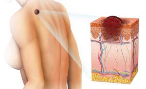 Câncer de pele: como prevenir