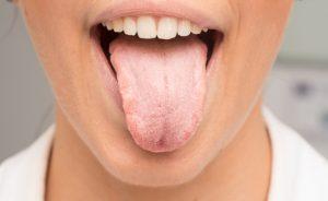 Candidíase Oral, adeus! Aqui estão os resultados de um novo estudo