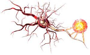 Esclerose múltipla: quando o formigamento é uma campainha de alarme