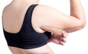 Lipofilling: uma nova maneira de explorar o tecido adiposo